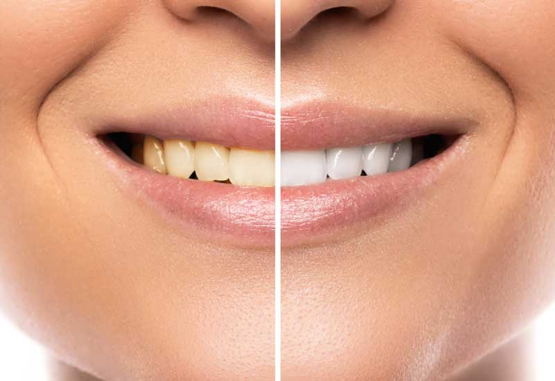 dental hygiene teeth cleaning healthy smile