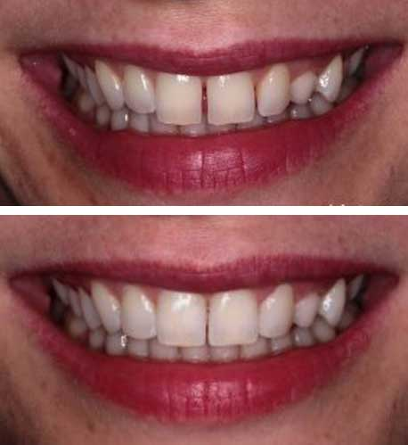cosmetic bonding dental treatment dublin malahide ivory