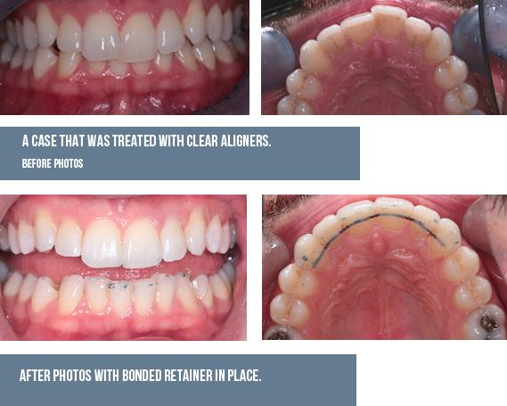 Cosmetic Braces   Dental Braces   Ivory Dental Care Dublin