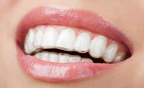 cosmetic braces dental service malahide