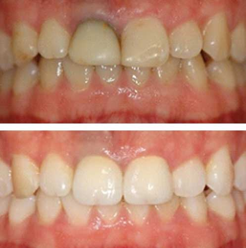 dental crown malahide