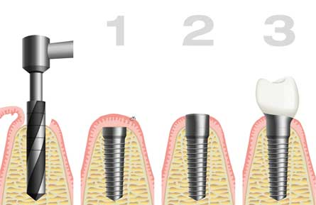 dental implants malahide