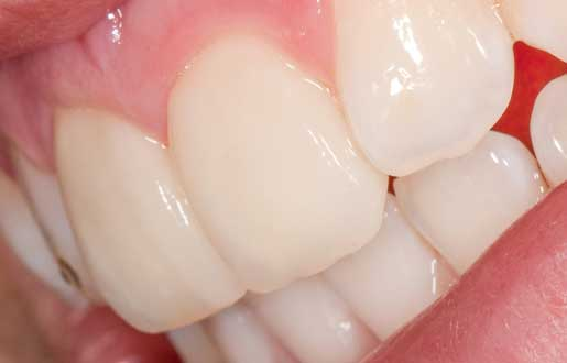 dental veneers ivory clinic malahide