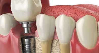 dental implants treatment dentist malahide dublin