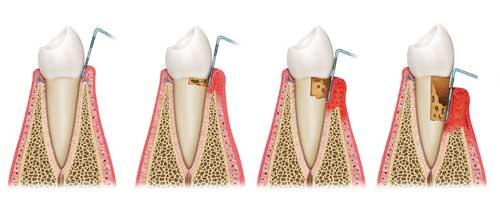 peridontal dental treatment
