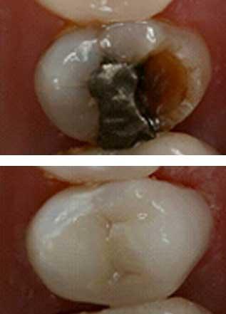porcelain fillings dental treatment malahide dublin
