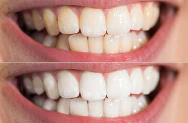 teeth whitening dental treatment service malahide dublin ivory
