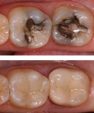 white fillings cosmetic dental treatment malahide dublin